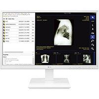 """LG 24CK560N-3A, 60.5 cm (23.8""""), Full HD, AMD G, 4 GB, 32 GB, White"""
