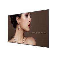 "BenQ ST6502 - 65"" Diagonal Class Smart Signage Series LED-backlit LCD display - digital signage - 4K UHD (2160p) 3840 x 2160 - direct-lit LED - black"